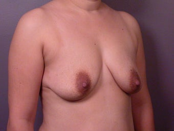 Breast Lift / Breast Augmentation