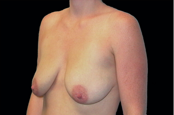 Breast Augmentation with mastoplexy