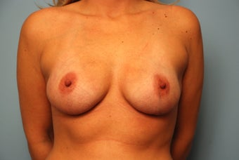 Bilateral Breast Reconstruction with Acellular Dermal Graft and Implants