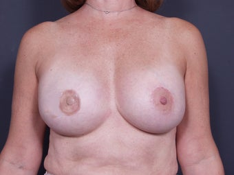 54 Year Old Female Breast Reconstruction