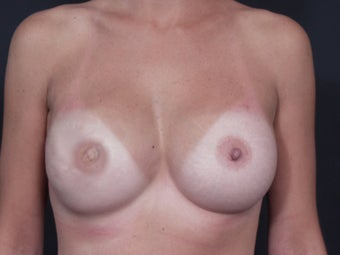 29 Year Old Female for Breast Reconstuction