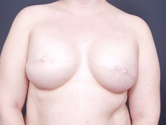 37 Year Old Female for Breast Reconstruction