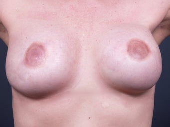 38 Year Old for Breast Reconstruction