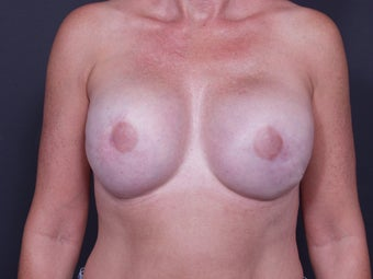 46 Year Old Female for Breast Reconstruction