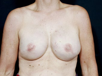 48 Year Old for Breast Reconstruction
