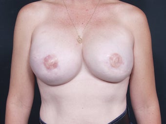 42 Year Old Female for Breast Reconstruction