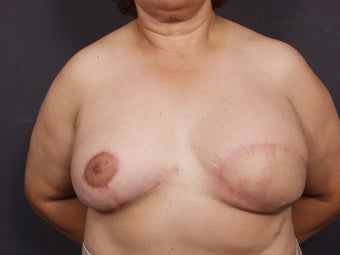 56 Year Old Female for Breast Reconstruction