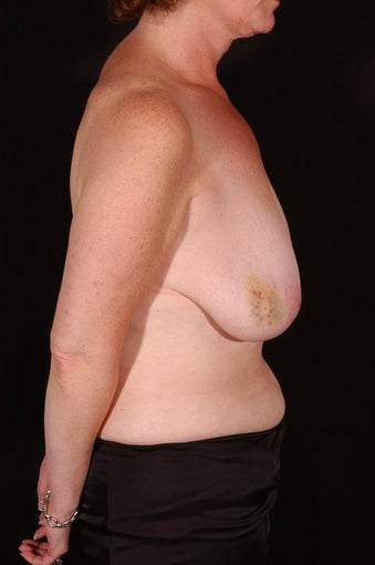 Breast Reconstruction and Reduction