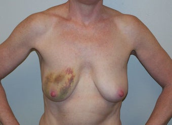 Breast Reconstruction