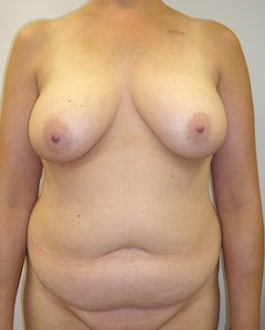 DIEP Flap Breast Reconstruction - Bilateral