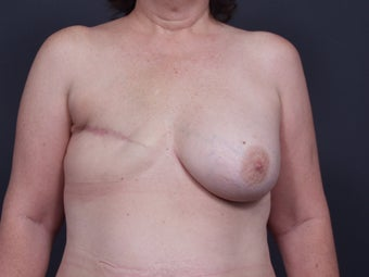 48 Year Old Female for Breast Reconstruction