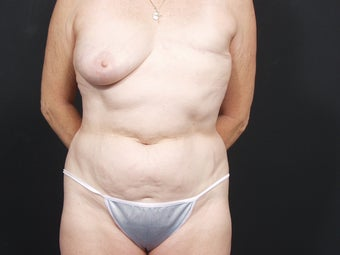 62 Year Old Female for Breast Reconstruction