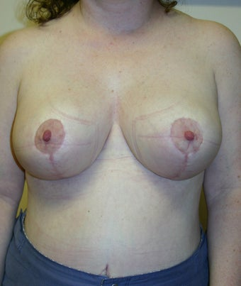 Breast reduction before and after, vertical short scar technique