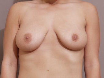 Breast Reduction - performed with liposuction only