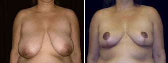37 year old female, breast reduction