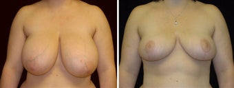 23 year old female, breast reduction