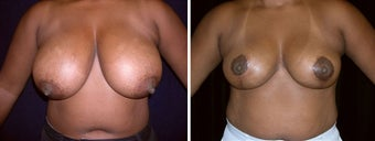 40 year old female, breast reduction