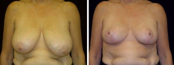 58 year old female, breast reduction