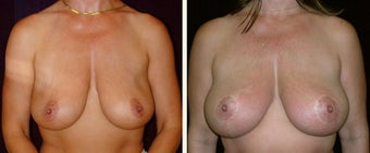 42 year old female, breast reduction