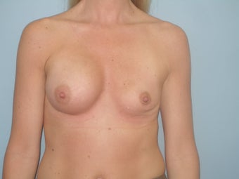 Complex Revisionary Breast Surgery-implant exhange after deflation