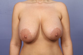 Explant of breast implants