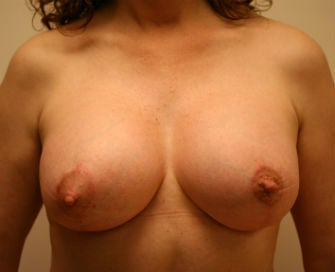 Breast augmentation-lift