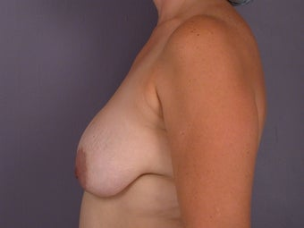 Breast lift and Implants