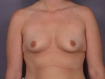 Circumareolar Breast Lift with Breast Implants