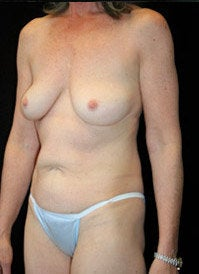 Breast Lift and Periareolar Lift