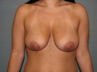 Breast lift