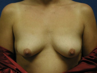 Mastopexy and Breast Augmentation