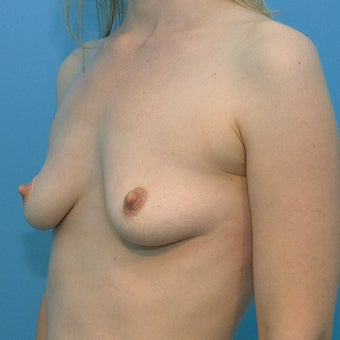 Vertical mastopexy with submuscular placement of gel implant