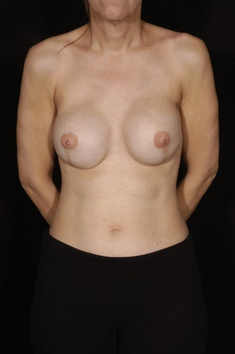 Breast Reconstruction with Implants