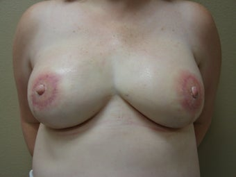 Nipple / Areola Reconstruction