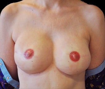 Breast reconstruction with silicone implants