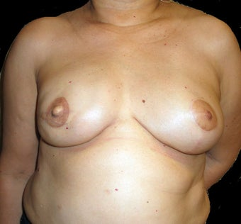 Breast Reconstruction - Left reduction, right silicone