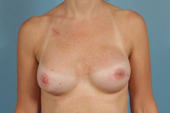 Breast Reconstruction after Unilateral Mastectomy