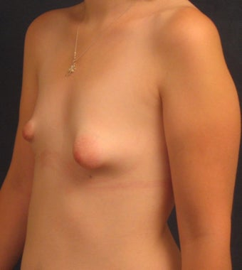 Reconstruction of Tubular Breast Deformity