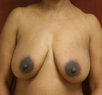 Bilateral Breast Reconstruction with Implants