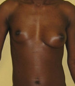 Brest Reconstruction With Natural Fat