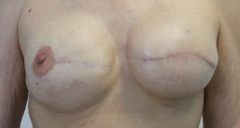 Revision of Reconstructed Breast