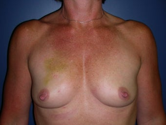 Breast Reconstruction-Direct-to-Implant