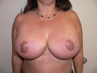 Ultimate Breast Reduction