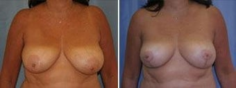 53 years old / breast reduction vertical technique