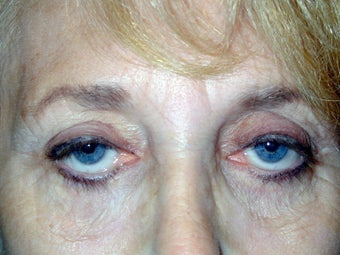 Upper Eyelid Ptosis Repair And Blepharoplasty; Lower Eyelid Blepharoplasty And Ectropion Repair; Endoscopic Brow Lift