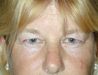 Endoscopic Brow Lift and Blepharoplasty