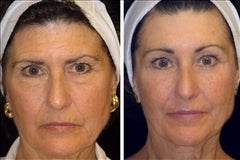 64 year old female, brow lift