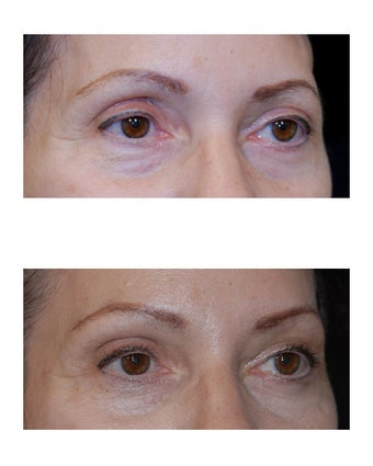Lateral Brow Lift
