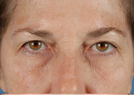 Browlift and Upper/Lower Eyes