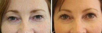 51 years old / upper lid blepharoplasty and endoscopic brow lift.